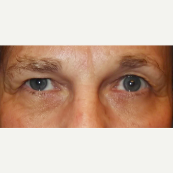 65-74 year old woman treated with Eyelid Surgery before 3286817