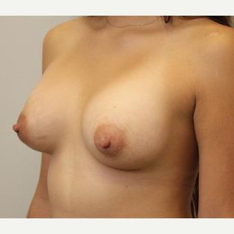 22 year old woman treated with Breast Augmentation after 3482960