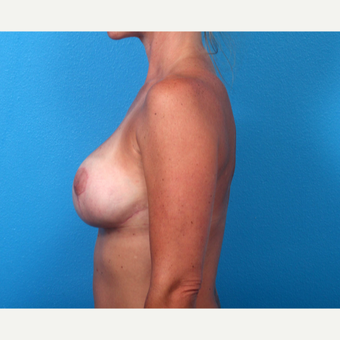 35-44 year old woman treated with Breast Implant Revision after 3366703