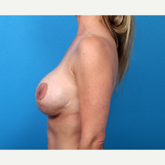 35-44 year old woman treated with Breast Implant Revision before 3366703