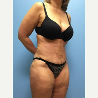 45 year old woman treated with Tummy Tuck after 2678551