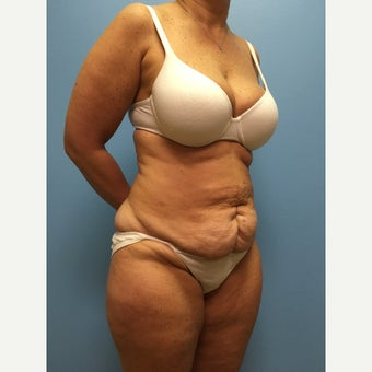 45 year old woman treated with Tummy Tuck before 2678551