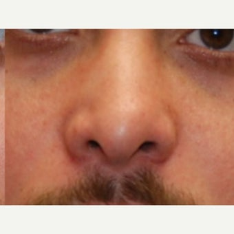 25-34 year old man treated with Silikon 1000 for nonsurgical revision rhinoplasty.
