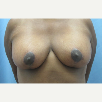 45-54 year old woman treated with Breast Lift after 3694964