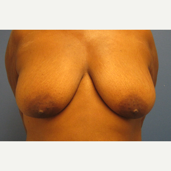 45-54 year old woman treated with Breast Lift before 3694964