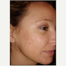 Woman treated for Melasma with Fraxel Laser before 1689849