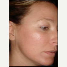 Woman treated for Melasma with Fraxel Laser after 1689849