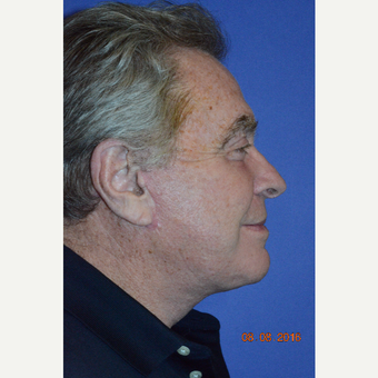 65-74 year old man treated with Face & Neck Lift after 3226889