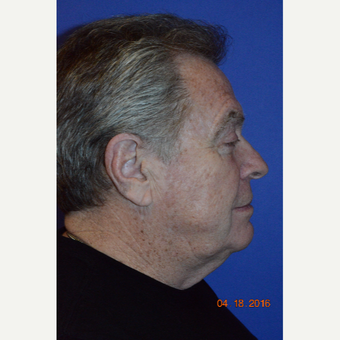 65-74 year old man treated with Face & Neck Lift before 3226889