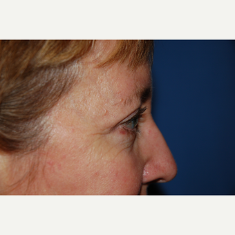 45-54 year old woman treated with Eyelid Surgery after 3782124