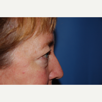 45-54 year old woman treated with Eyelid Surgery before 3782124
