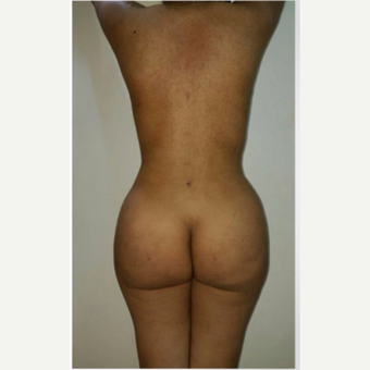 18-24 year old woman treated with Brazilian Butt Lift- liposculpture after 3176209