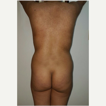 18-24 year old woman treated with Brazilian Butt Lift- liposculpture before 3176209