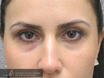 Upper Lid Blepharoplasty (Eyelid Sugery) – 24 Year Old Female after 1447314