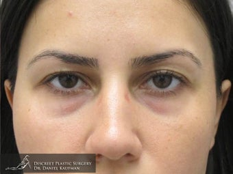 Upper Lid Blepharoplasty (Eyelid Sugery) – 24 Year Old Female before 1447314