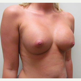Saline Breast Implants for this 24 Year Old Woman after 3042898