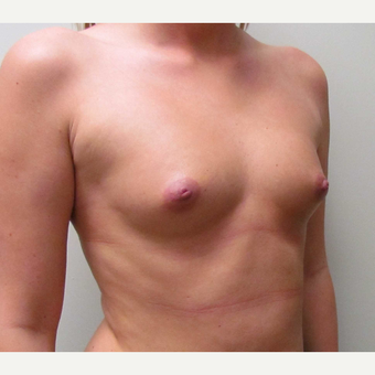 Saline Breast Implants for this 24 Year Old Woman before 3042898