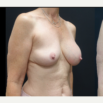 35-44 year old woman treated with Mentor Breast Implants before 3731637