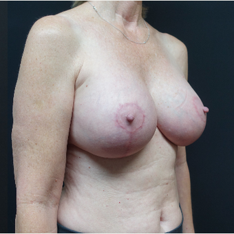 35-44 year old woman treated with Mentor Breast Implants after 3731637