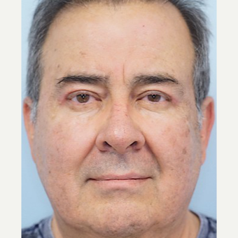 55-64 year old man treated with Ptosis Surgery after 3727832