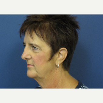 55-64 year old woman treated with Facelift before 3439732