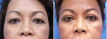 55-64 year old woman treated with Asian Eyelid Surgery