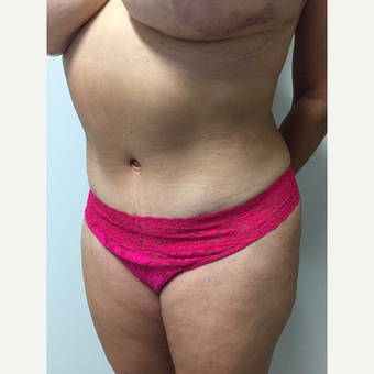 52 year old woman treated with Tummy Tuck and Liposuction after 3676629