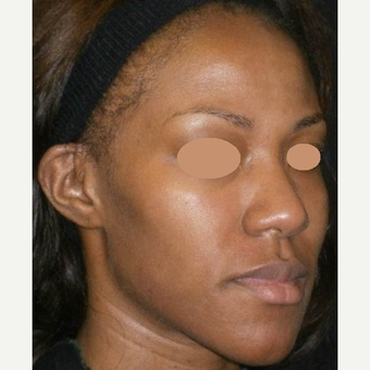 25-34 year old woman treated with Chemical Peel after 3150301
