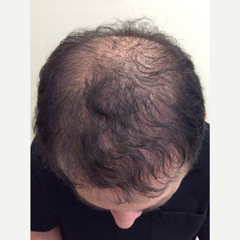 35-44 year old man treated with FUE Hair Transplant after 3696779