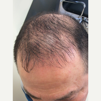 35-44 year old man treated with FUE Hair Transplant before 3696779