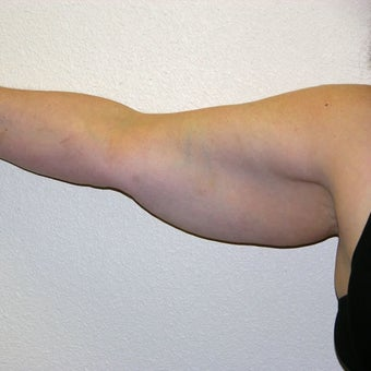 51 yr old woman treated with SmartLipo on the Arms. before 314180