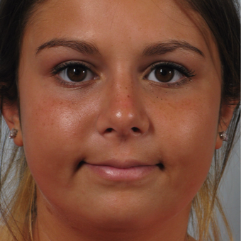 18-24 year old woman treated with Rhinoplasty after 3261537