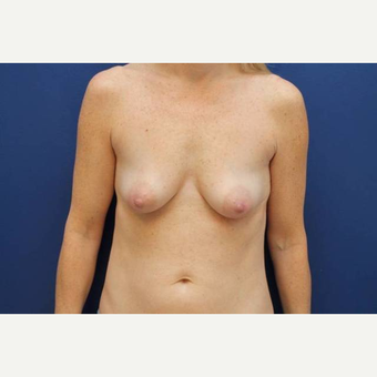 40 year old female, 375cc silicone gel high profile breast implants, submuscular before 3814604
