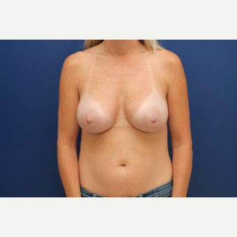 40 year old female, 375cc silicone gel high profile breast implants, submuscular after 3814604