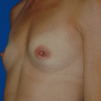 Breast Augmentation with Sientra Anatomical Shaped Silicone Implants 350cc before 3850945