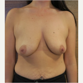 25-34 year old woman treated with Breast Lift with Implants before 2989379