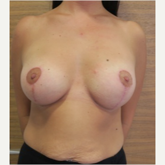 25-34 year old woman treated with Breast Lift with Implants after 2989379