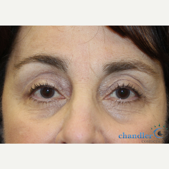 65-74 year old woman treated with Ptosis Surgery after 3108047