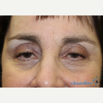 65-74 year old woman treated with Ptosis Surgery before 3108047