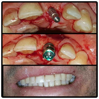 Dental implants Dominican republic before 2197969