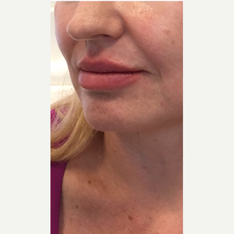 35-44 year old woman treated with Juvederm after 3331390