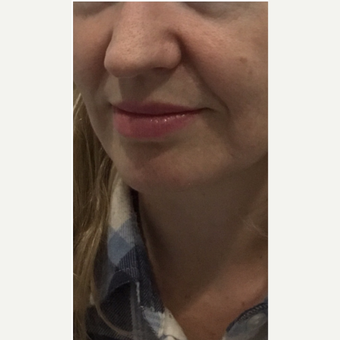 35-44 year old woman treated with Juvederm before 3331390