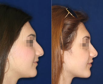 Nose Surgery before 1430611