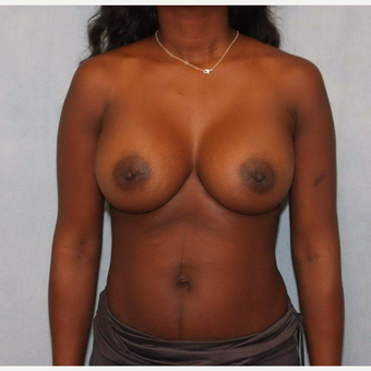 35-44 year old woman treated with Breast Augmentation after 3487527