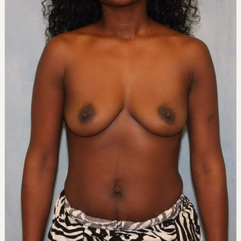 35-44 year old woman treated with Breast Augmentation before 3487527