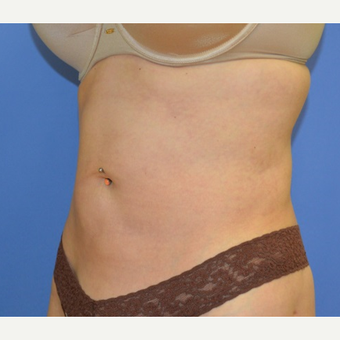 35-44 year old woman treated with Liposuction after 2460861