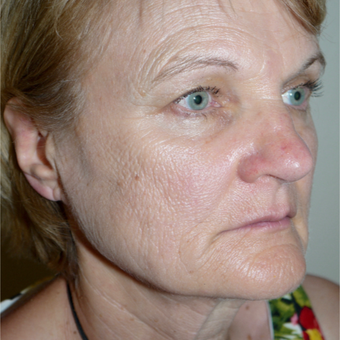 55-64 year old woman treated with Facelift before 3095790