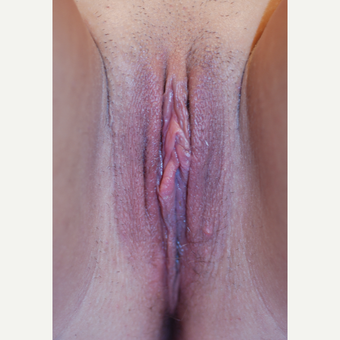 25-34 year old woman treated with Labiaplasty after 3621839