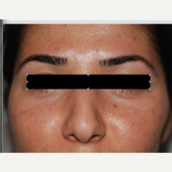 25-34 year old woman treated with Rhinoplasty after 3184677
