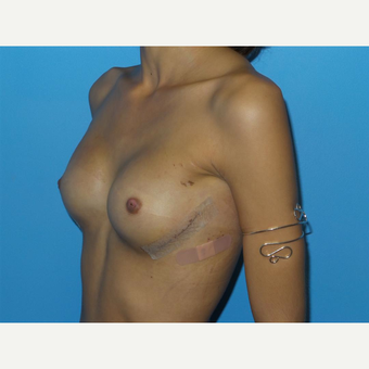 18-24 year old woman treated with Breast Reconstruction after 3094388
